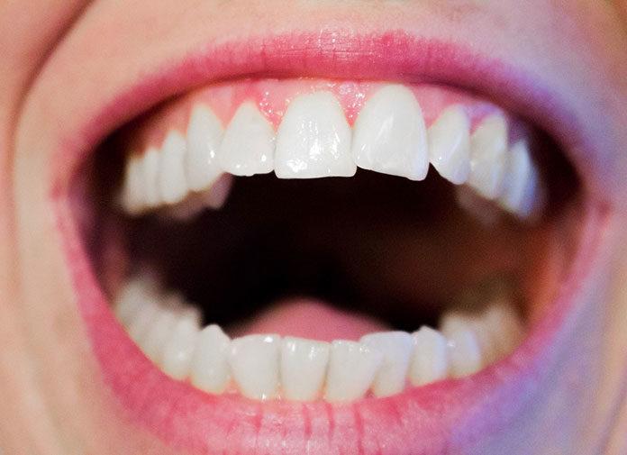 W jaki sposób prawidłowo dbać o zęby?